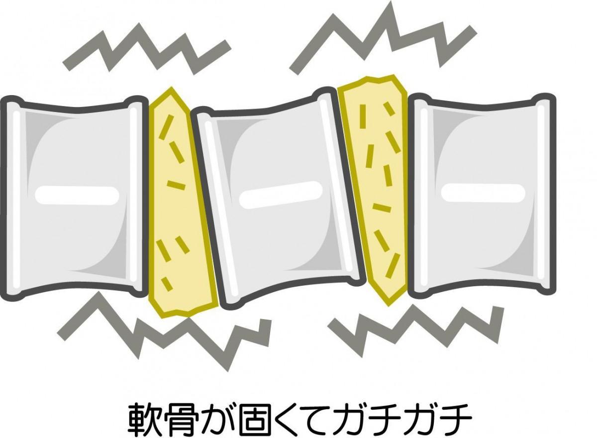 かたい関節