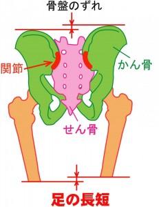 骨盤のズレ 足の長さが違う